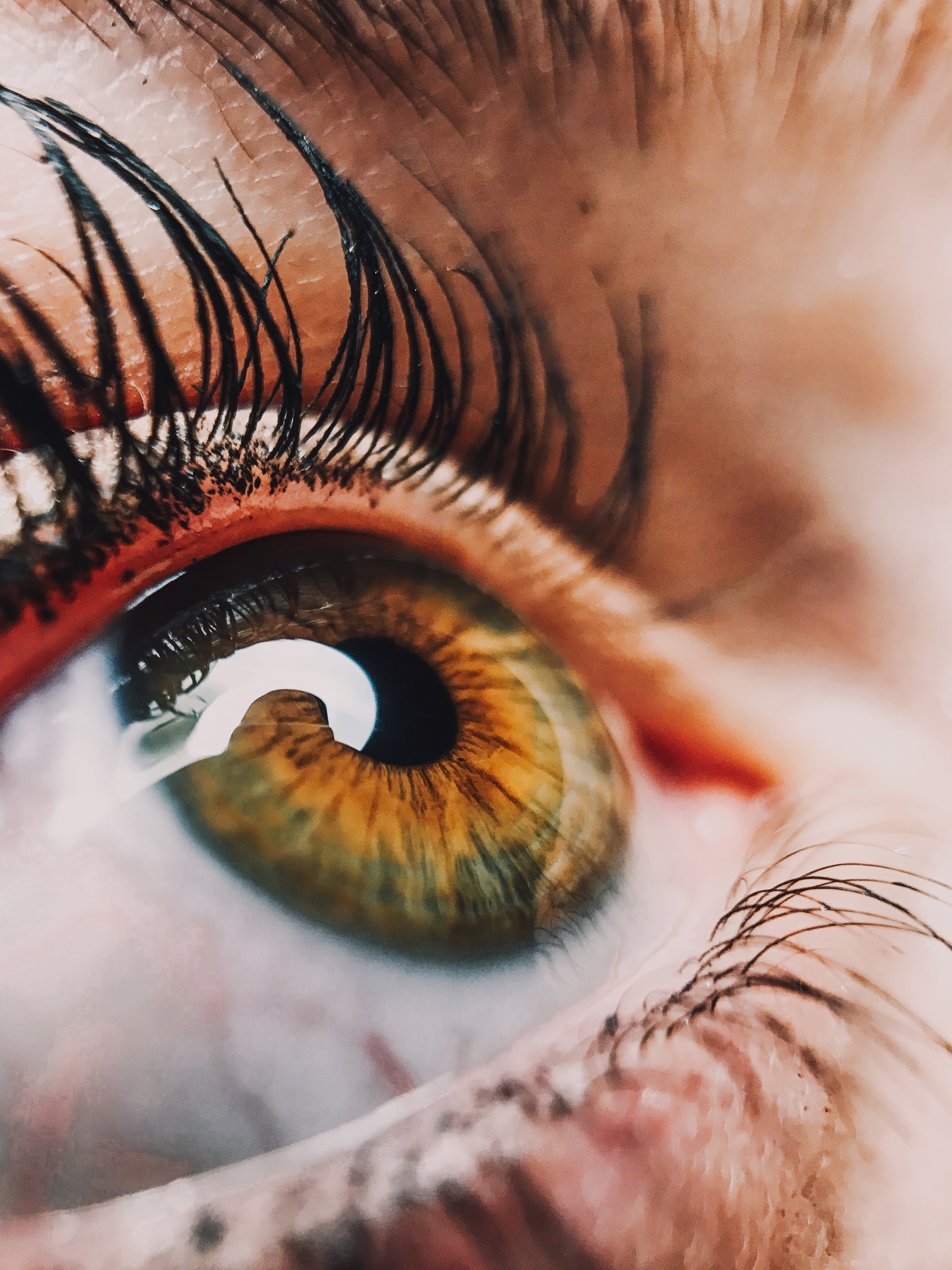 """Review 2: """"Histopathological assessments reveal retinal vascular changes, inflammation, and gliosis in patients with lethal COVID-19"""""""
